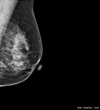 Mammogram digi image