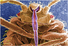 Cdc_micrograph_common_bed_bug